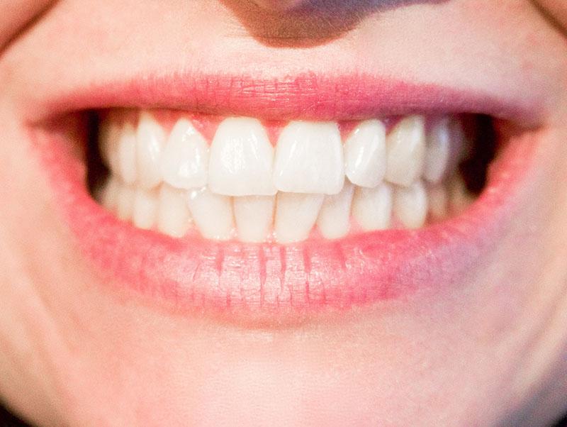 Bổ sung canxi cho răng hiệu quả nhất bằng cách nào?