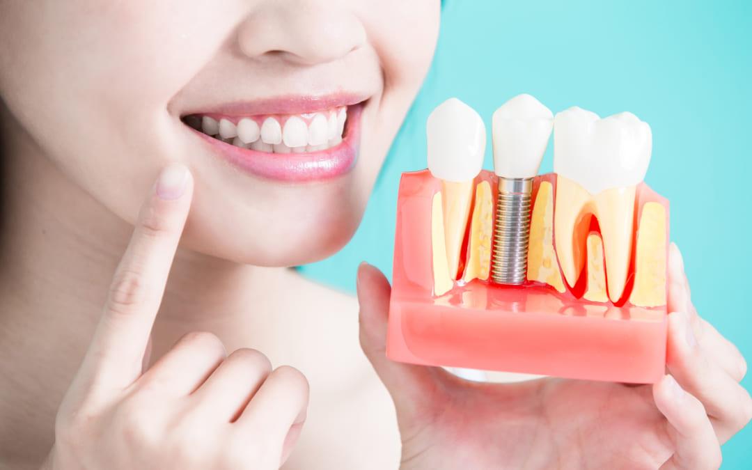 Tất tần tật những điều cần biết trồng răng implant bạn nên biết