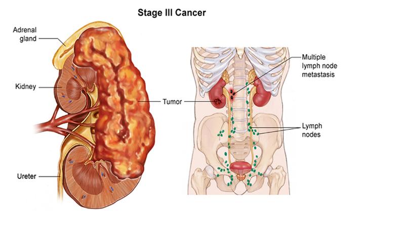 Ung thư thận là gì, biểu hiện và các phương pháp điều trị ung thư thận hiện nay?